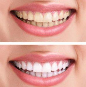 Vorher / Nachher gebleichte Zähne